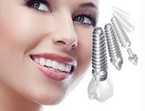 Имплантация зубов в Ярославле - цены на классическую имплантацию зубов (зубные импланты)